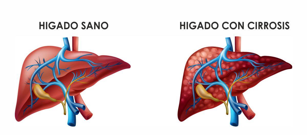 Tratamiento de la cirrosis, hipertermia, hipertermia local profunda, en Clinica Biomedic, medicina natural y terapias naturales
