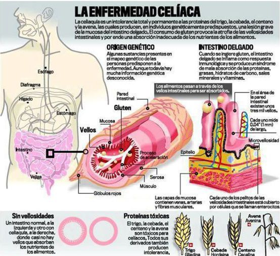 hidroterapia colon, hidroterapia del Colon, hidrocolon