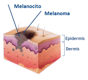centro de tratamientos melanoma, centro de terapias, cancer de piel
