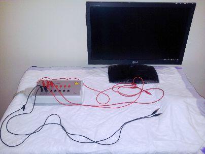 electroterapia, Clinica Biomedic Málaga, España